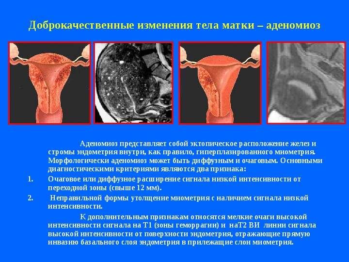 Узи признаки диффузных изменениях матки - Старый проверенный сайт авторских фото