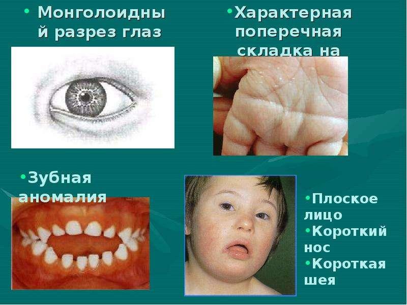 Характерная поперечная складка на ладони Монголоидный разрез глаз