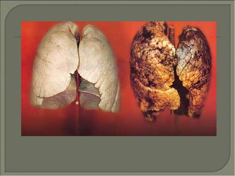 the damage caused by smoking To prevent damage caused by smoking and its treatment clears the mucous membrane of the respiratory system, including the lungs stimulates the renewal of the mucosa and prevents the occurrence of inflammation of the respiratory system caused by smoking.
