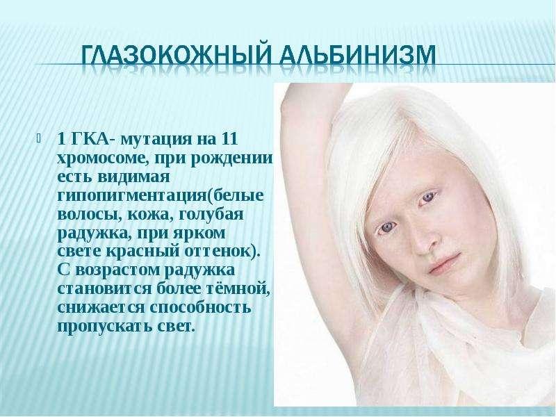 Альбинизм может быть связан