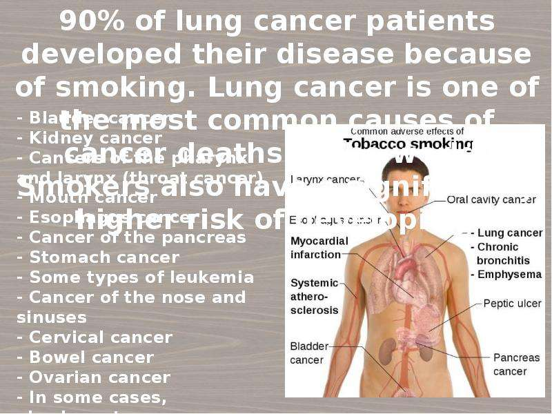 stomach and bladder cancer essay Bladder cancer gastric cancer (see stomach cancer) cancer is the uncontrolled growth of abnormal cells in the body.
