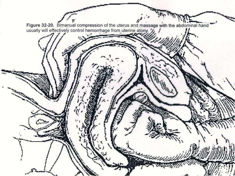 lekarstvo-ot-immuniteta-stenki-vlagalisha
