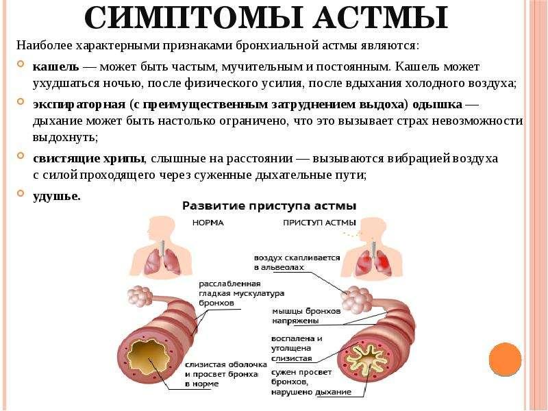 Бронхиальная астма симптомы у взрослых на начальной