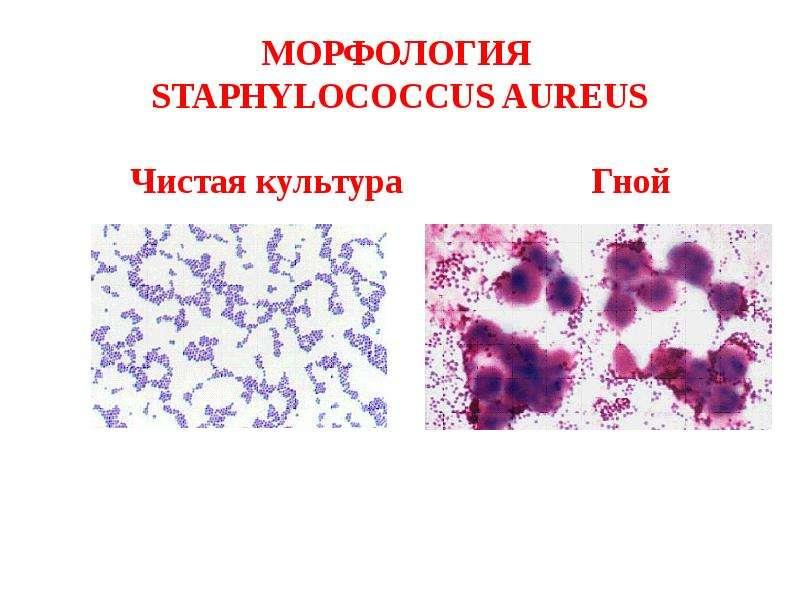 ogurets-vo-vlagalishe-kishechnaya-palochka-stafilokokk