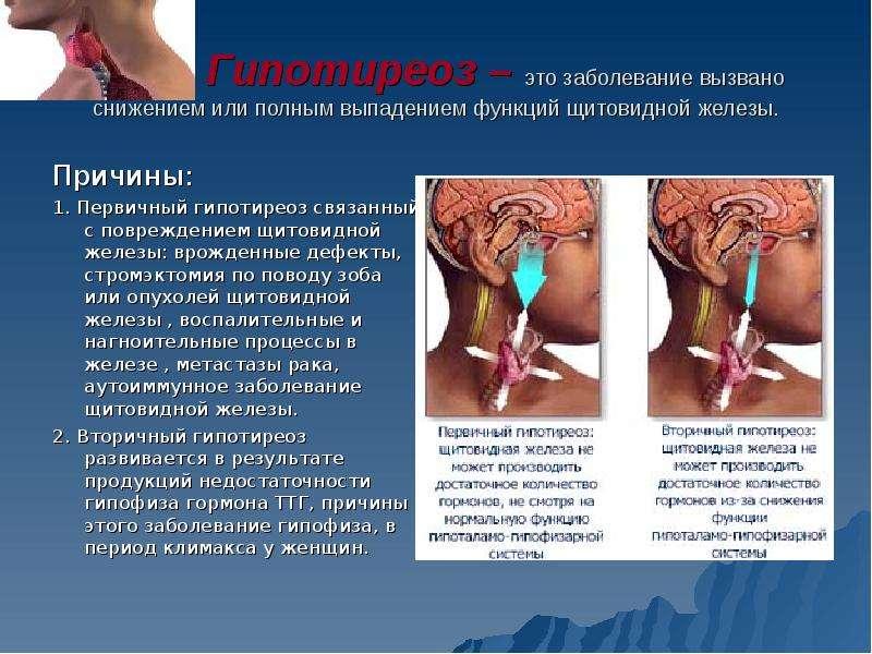 отказаться гипотиреоз перешел в тиреотоксикоз база предложений