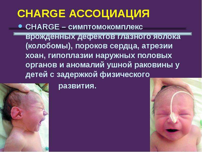 своими впечатлениями!Если патология ушной раковины у новорожденного тебя
