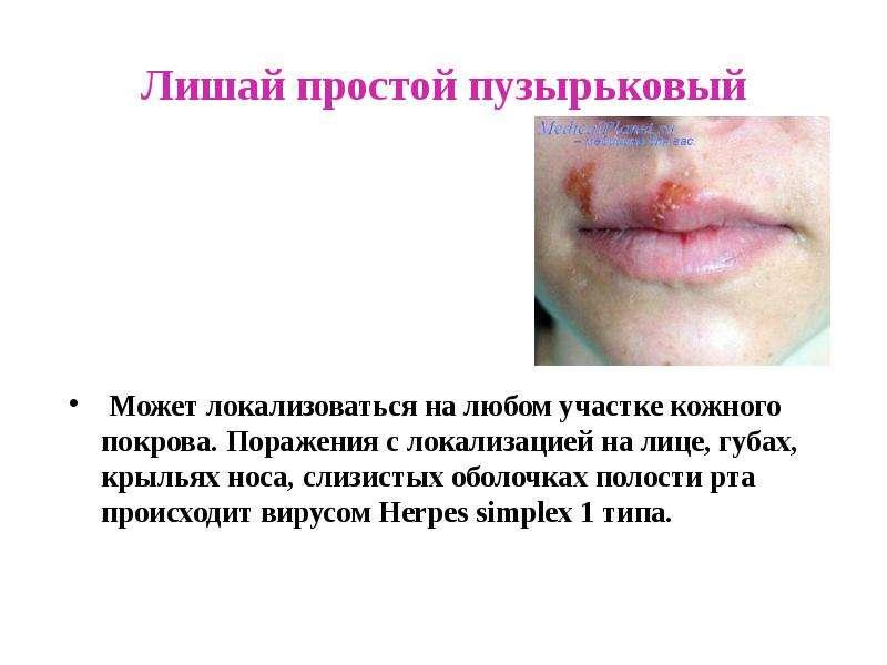 """Презентация на тему """"Заболевания кожи"""" - скачать презентации по Биологии - скачать презентацию"""