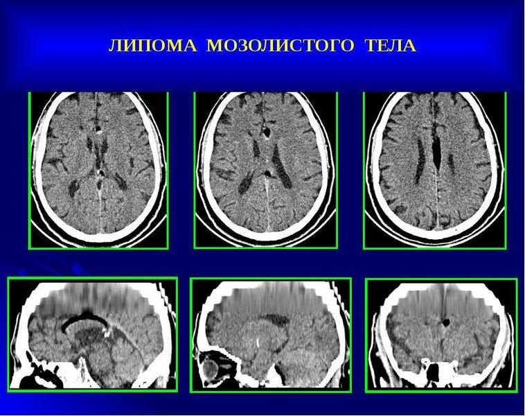 липома левой части головного мозга часов зимнее