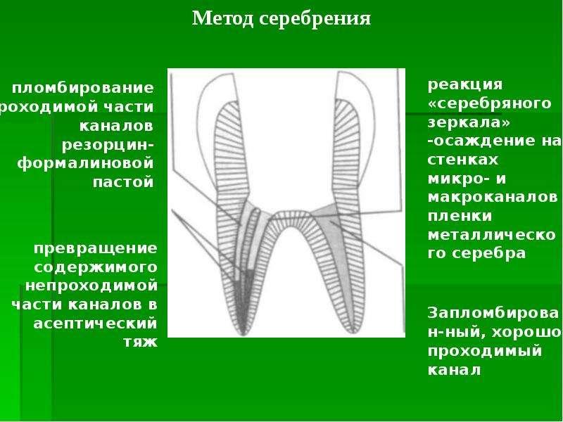 Методы обработки труднопроходимых корневых каналов, слайд 13