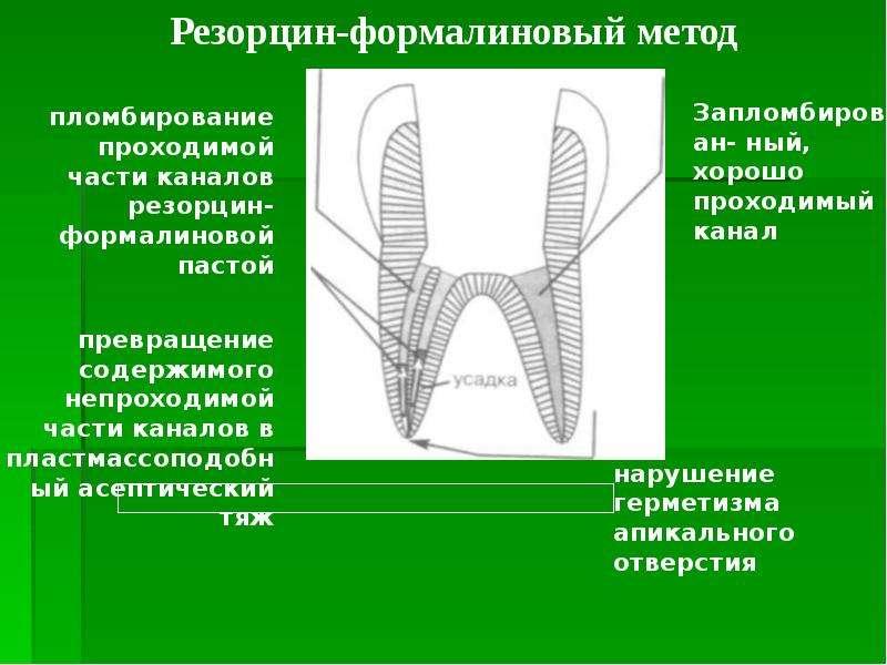 Методы обработки труднопроходимых корневых каналов, слайд 10