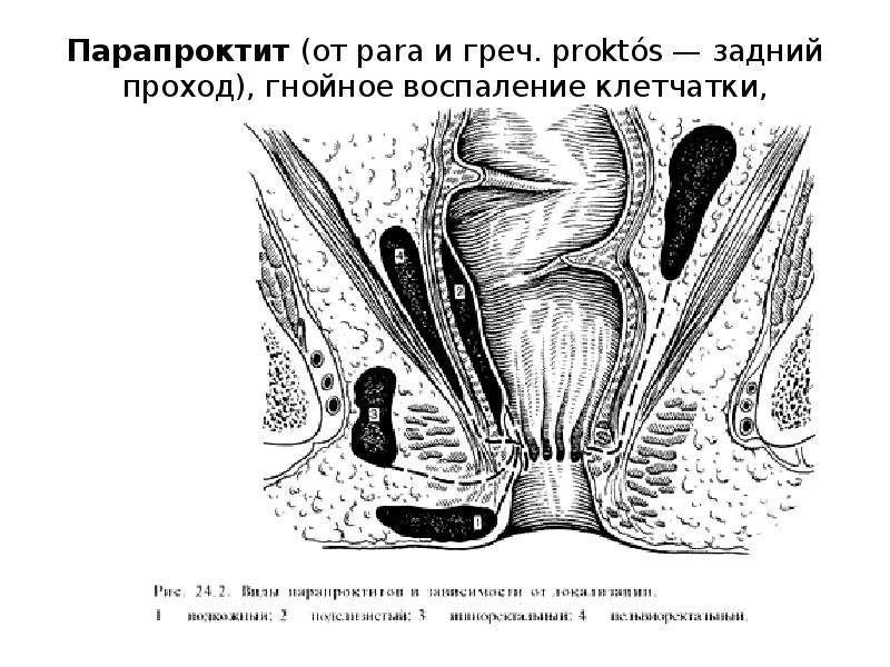 Аденома простаты лекарства растительные