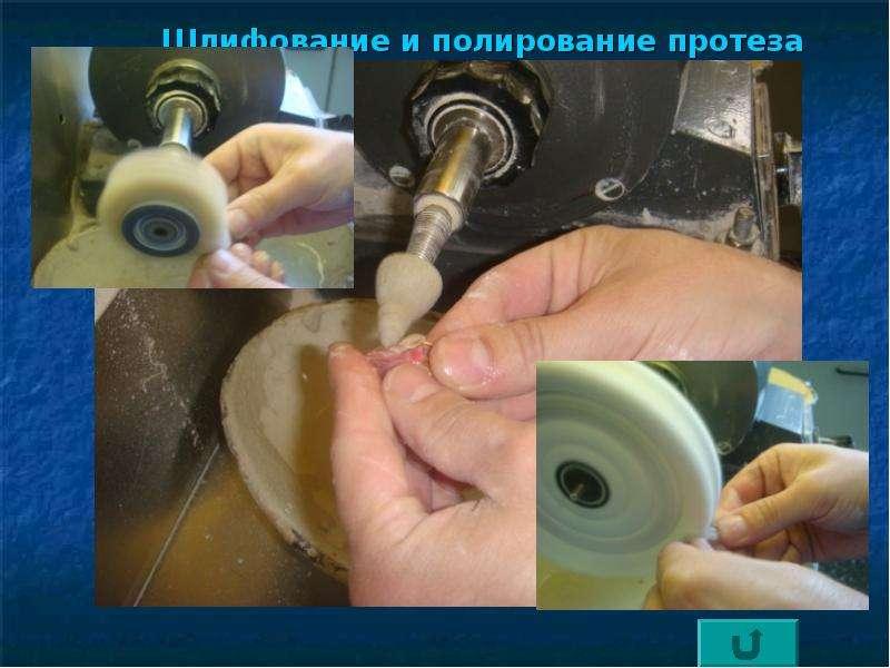 Как отполировать зубные протезы в домашних условиях