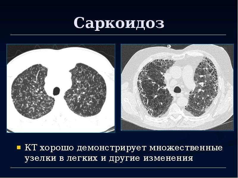 Саркоидоз как долго лечить 133