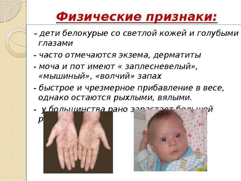 Физические признаки: - дети белокурые со светлой кожей и голубыми глазами - часто отмечаются экзема,