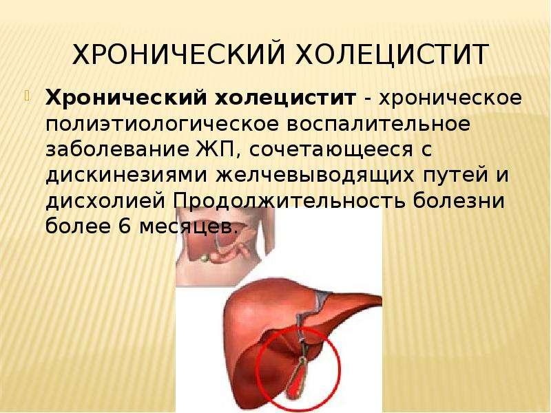 Хронический холецистит, дисфункция желчного пузыря, Спазм сфинктера одди, хронческий панкреатит - скачать презентацию