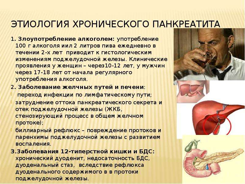 etiology of pancreatitis Pancreatitis is inflammation of the pancreas, and the condition has two types, chronic and acute there are numerous causes of pancreatitis, and symptoms can range from mild to severe treatment of pancreatitis depends upon if it is chronic or acute.