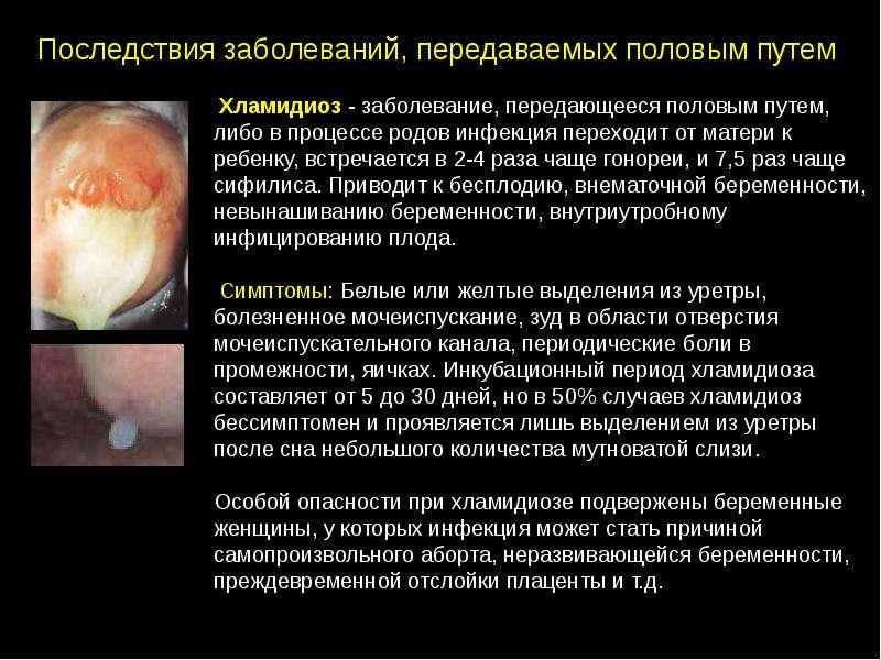 Заболевание половых органов хламидиоз - Страница новейших галерей
