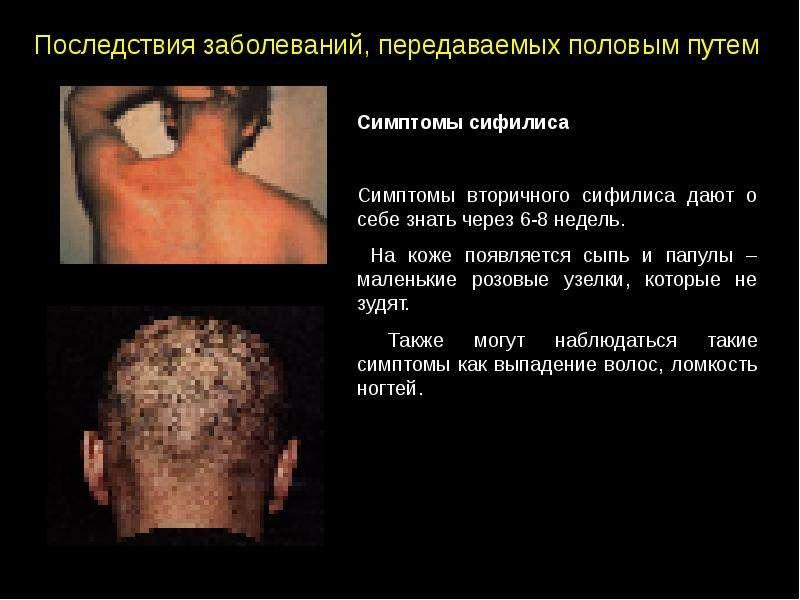 Заболевания передающиеся через минет