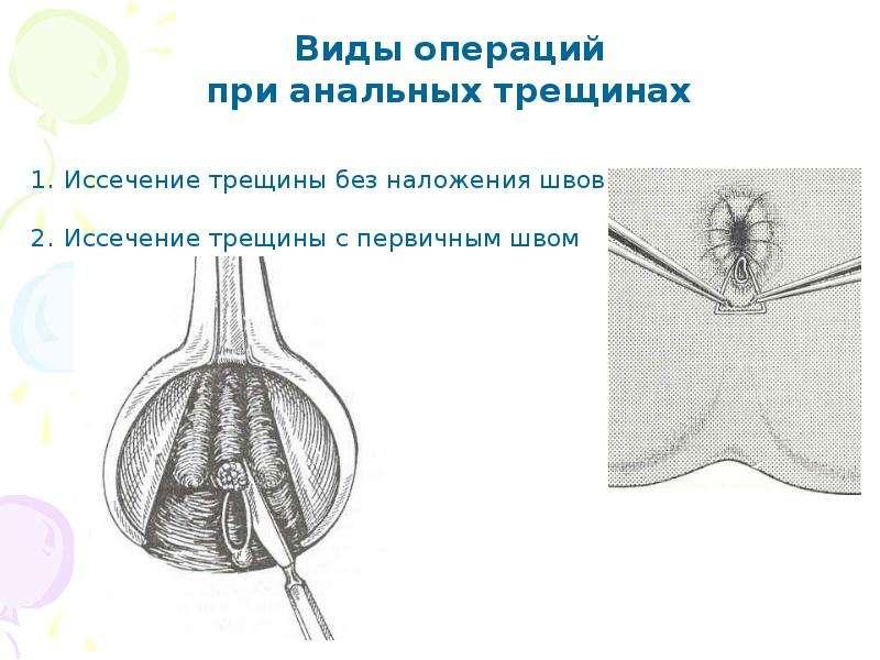 analnie-treshini-rekomendatsii