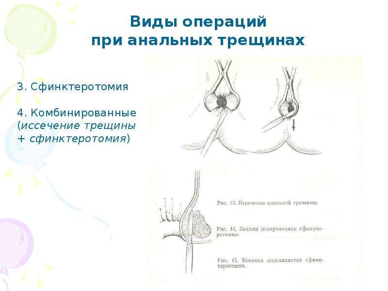 issechenie-zadney-analnoy-treshini