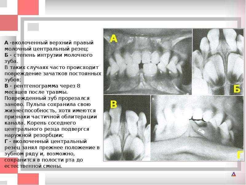 Повредили зачаток зуба