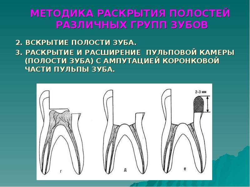 Что такое раскрытие полости зуба