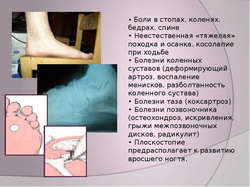 психологические причины болезни суставов