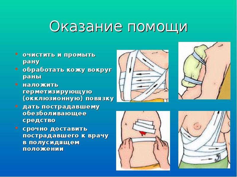 Оказание помощи очистить и промыть рану обработать кожу вокруг раны наложить герметизирующую (окклюз