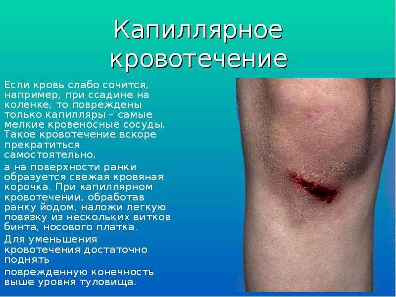 Капиллярное кровотечение Если кровь слабо сочится, например, при ссадине на коленке, то повреждены т