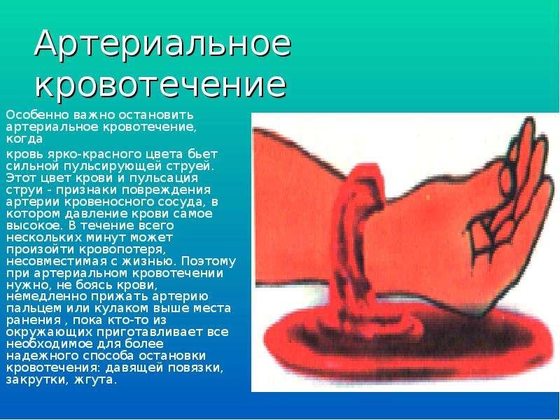 Артериальное кровотечение Особенно важно остановить артериальное кровотечение, когда кровь ярко-крас