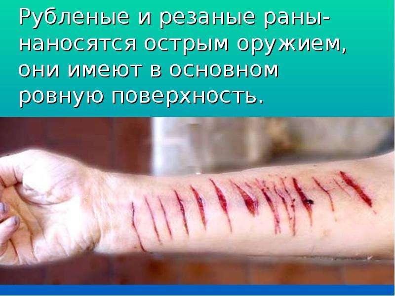 Рубленые и резаные раны- наносятся острым оружием, они имеют в основном ровную поверхность.