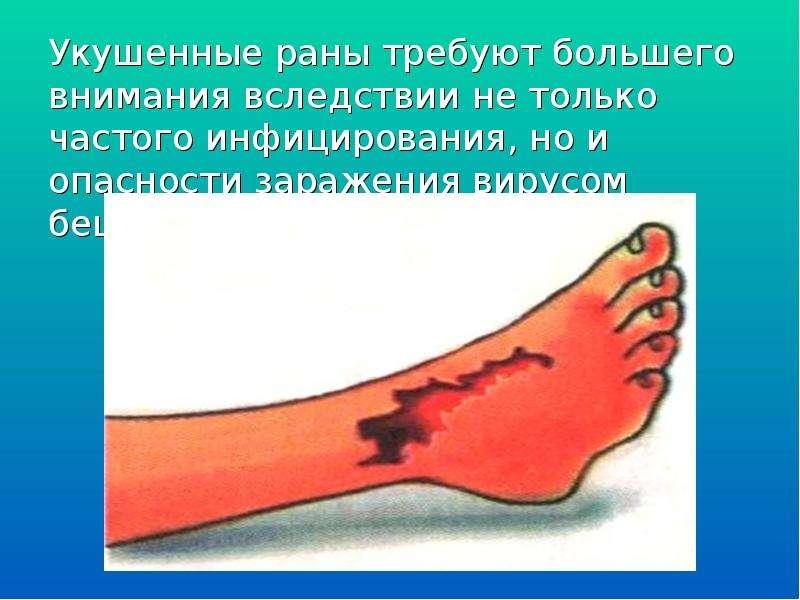 Укушенные раны требуют большего внимания вследствии не только частого инфицирования, но и опасности