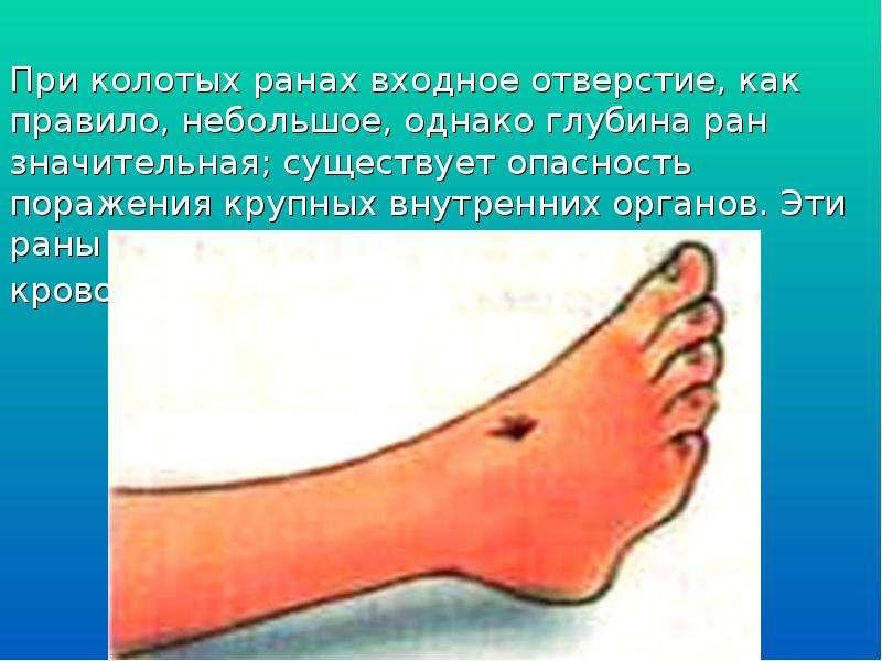 При колотых ранах входное отверстие, как правило, небольшое, однако глубина ран значительная; сущест