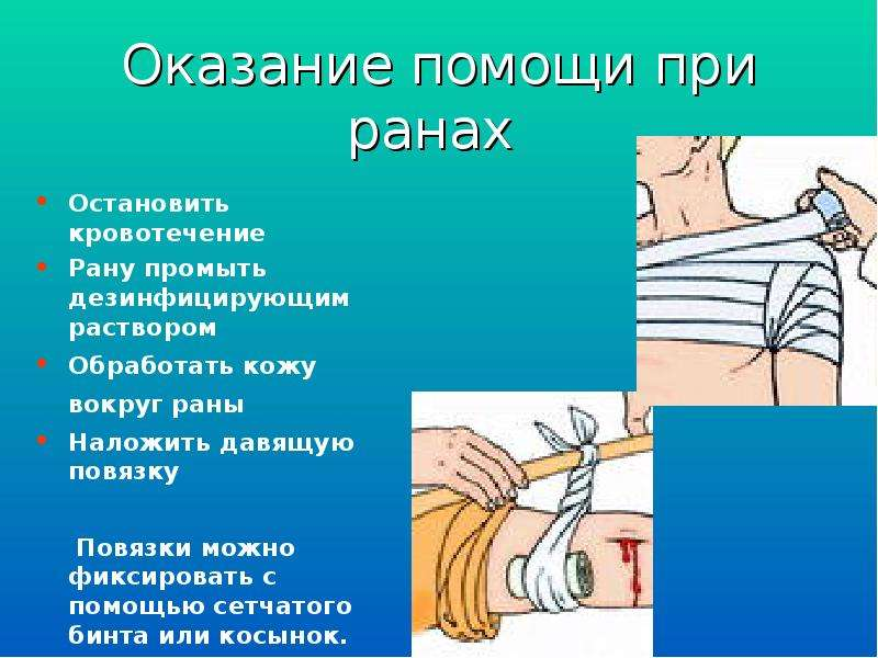 Оказание помощи при ранах Остановить кровотечение Рану промыть дезинфицирующим раствором Обработать