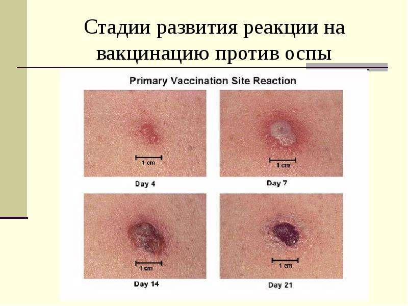 Вирусология СПбГУ 2013г - скачать презентацию