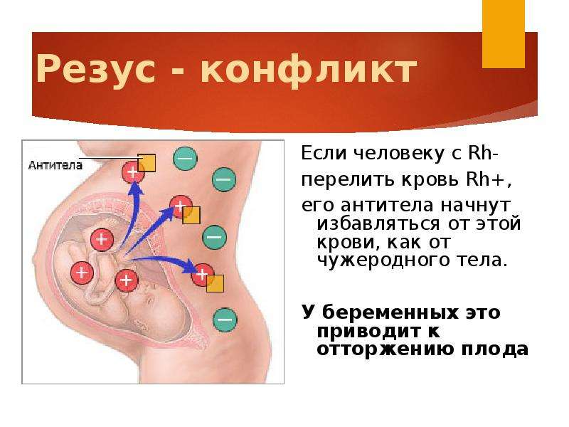 Иммунизация беременных с отрицательным резусом это 72