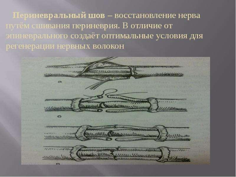Нейрофибрилла