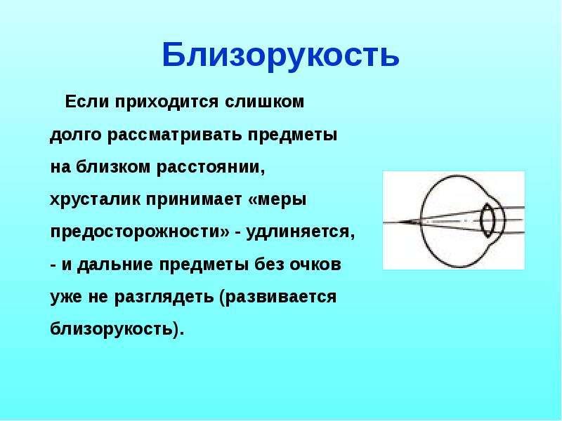 Близорукость Если приходится слишком долго рассматривать предметы на близком расстоянии, хрусталик п