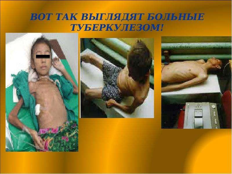 В гороховце принудительно госпитализировали нездорового заразной формой туберкулеза