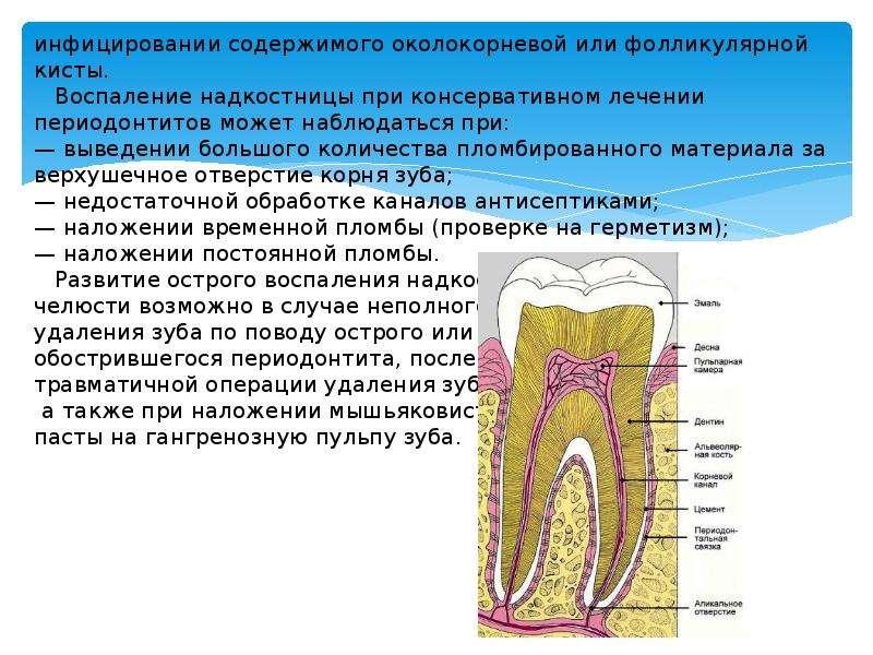 Как лечить воспалительные заболевания полости рта