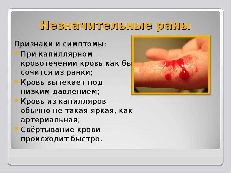 Незначительные раны Признаки и симптомы: При капиллярном кровотечении кровь как бы сочится из ранки;
