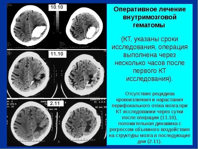 Инсульт геморрагический как быстро рассасывается гематома