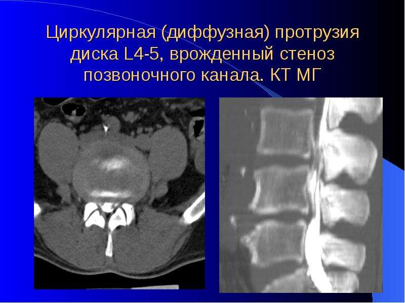 Диффузная протрузия межпозвонковых дисков шеи