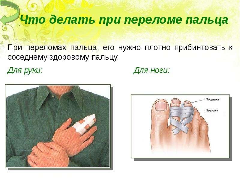 Что надо делать при переломе пальца на руке