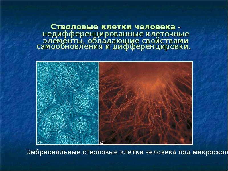 Стволовые клетки человека - недифференцированные клеточные элементы, обладающие свойствами самообнов