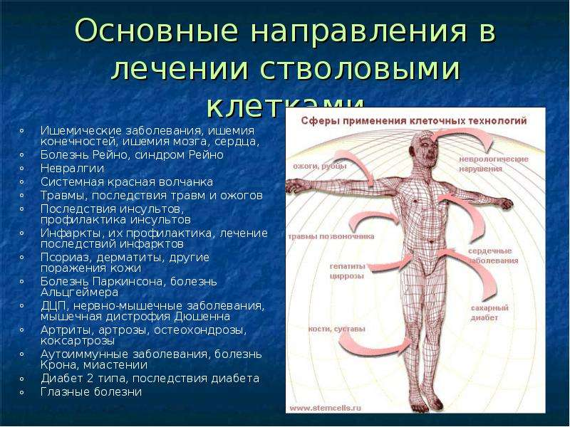 Основные направления в лечении стволовыми клетками Ишемические заболевания, ишемия конечностей, ишем