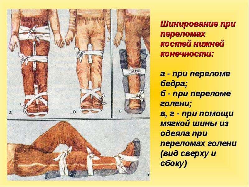 Иммобилизация конечности при переломе костей