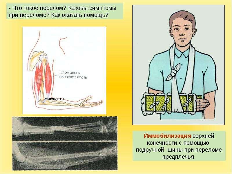 каковы признаки и первая помощь при растяжении суставных связок