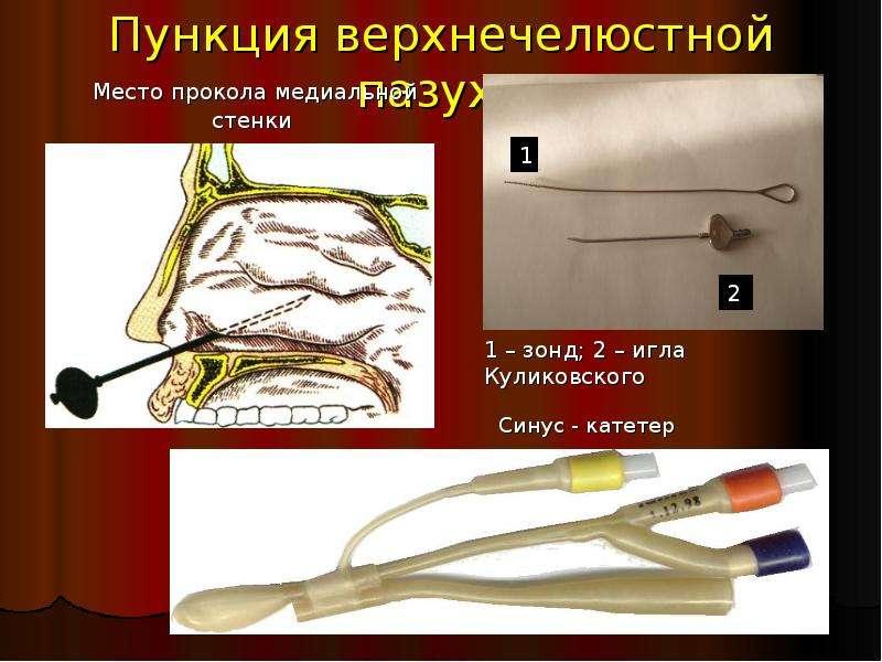 Игла куликовского для прокола гайморовой полости