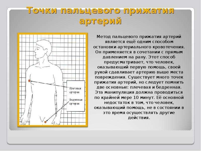 Точки пальцевого прижатия артерий Метод пальцевого прижатия артерий является ещё одним способом оста